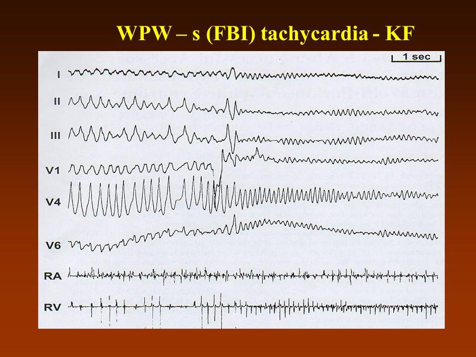 WPW – s (FBI) tachycardia - KF