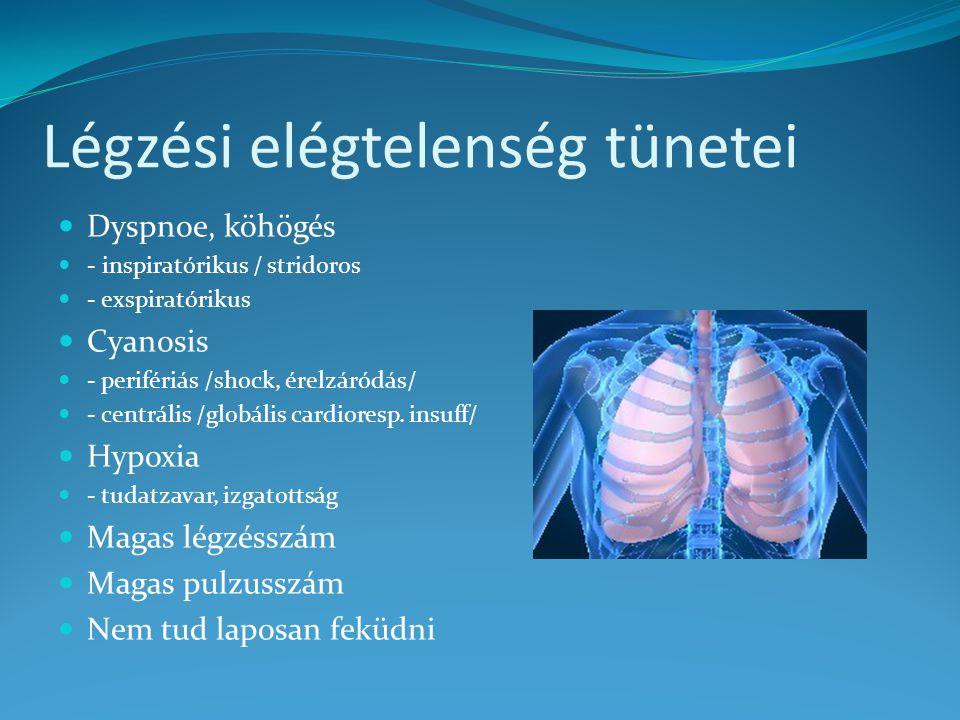 Légzési elégtelenség tünetei Dyspnoe, köhögés - inspiratórikus / stridoros - exspiratórikus Cyanosis - perifériás /shock, érelzáródás/ - centrális /gl
