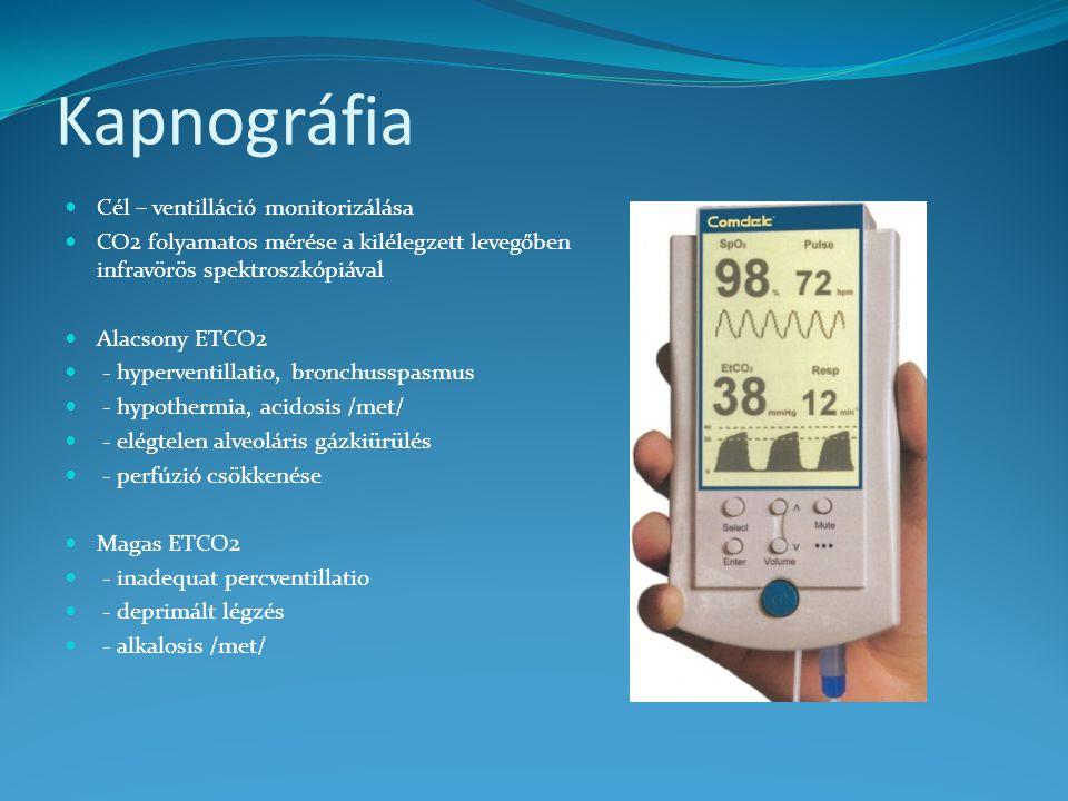 Kapnográfia Cél – ventilláció monitorizálása CO2 folyamatos mérése a kilélegzett levegőben infravörös spektroszkópiával Alacsony ETCO2 - hyperventillatio, bronchusspasmus - hypothermia, acidosis /met/ - elégtelen alveoláris gázkiürülés - perfúzió csökkenése Magas ETCO2 - inadequat percventillatio - deprimált légzés - alkalosis /met/