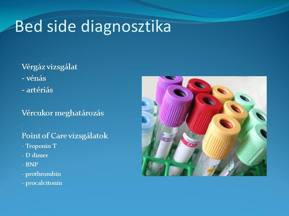 Bed side diagnosztika Vérgáz vizsgálat - vénás - artériás Vércukor meghatározás Point of Care vizsgálatok - Troponin T - D dimer - BNP - prothrombin - procalcitonin