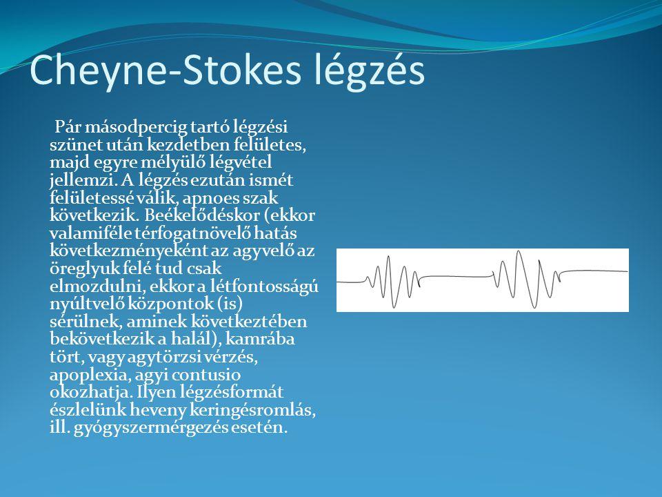 Cheyne-Stokes légzés Pár másodpercig tartó légzési szünet után kezdetben felületes, majd egyre mélyülő légvétel jellemzi.