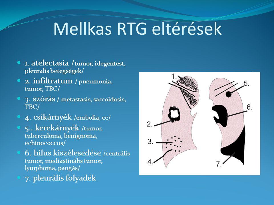Mellkas RTG eltérések 1. atelectasia / tumor, idegentest, pleuralis betegségek/ 2. infiltratum / pneumonia, tumor, TBC/ 3. szórás / metastasis, sarcoi