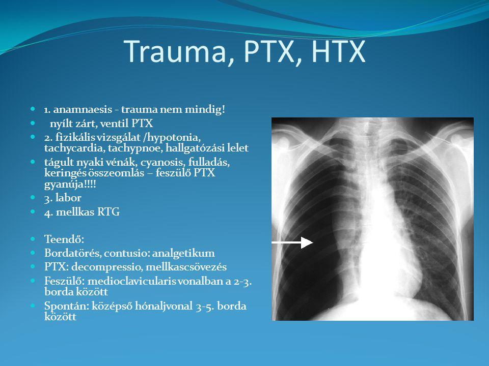 Trauma, PTX, HTX 1. anamnaesis - trauma nem mindig! nyílt zárt, ventil PTX 2. fizikális vizsgálat /hypotonia, tachycardia, tachypnoe, hallgatózási lel