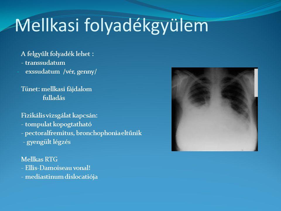 Mellkasi folyadékgyülem A felgyűlt folyadék lehet : - transsudatum - exssudatum /vér, genny/ Tünet: mellkasi fájdalom fulladás Fizikális vizsgálat kapcsán: - tompulat kopogtatható - pectoralfremitus, bronchophonia eltűnik - gyengült légzés Mellkas RTG - Ellis-Damoiseau vonal.