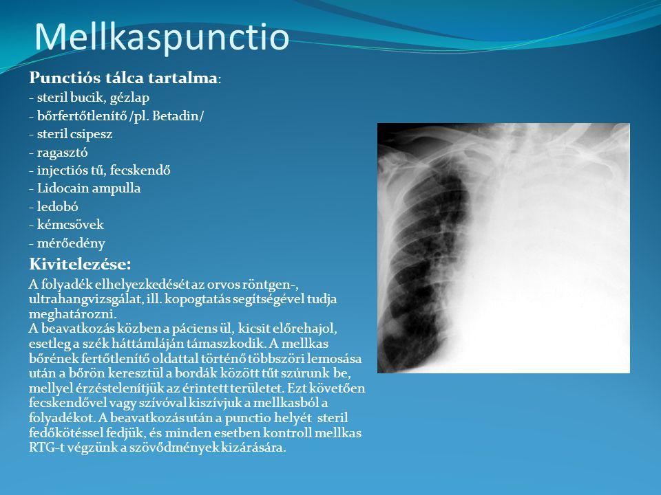 Mellkaspunctio Punctiós tálca tartalma : - steril bucik, gézlap - bőrfertőtlenítő /pl. Betadin/ - steril csipesz - ragasztó - injectiós tű, fecskendő