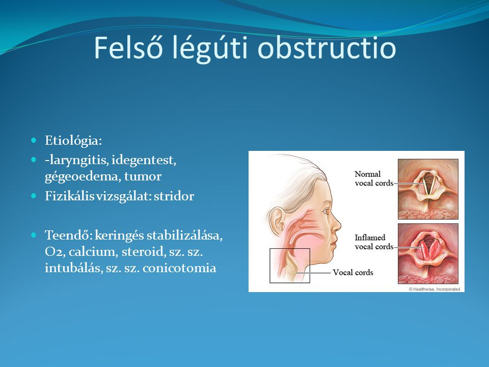 Felső légúti obstructio Etiológia: -laryngitis, idegentest, gégeoedema, tumor Fizikális vizsgálat: stridor Teendő: keringés stabilizálása, O2, calcium, steroid, sz.
