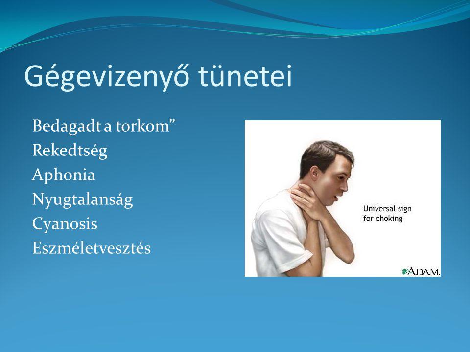 """Gégevizenyő tünetei Bedagadt a torkom"""" Rekedtség Aphonia Nyugtalanság Cyanosis Eszméletvesztés"""