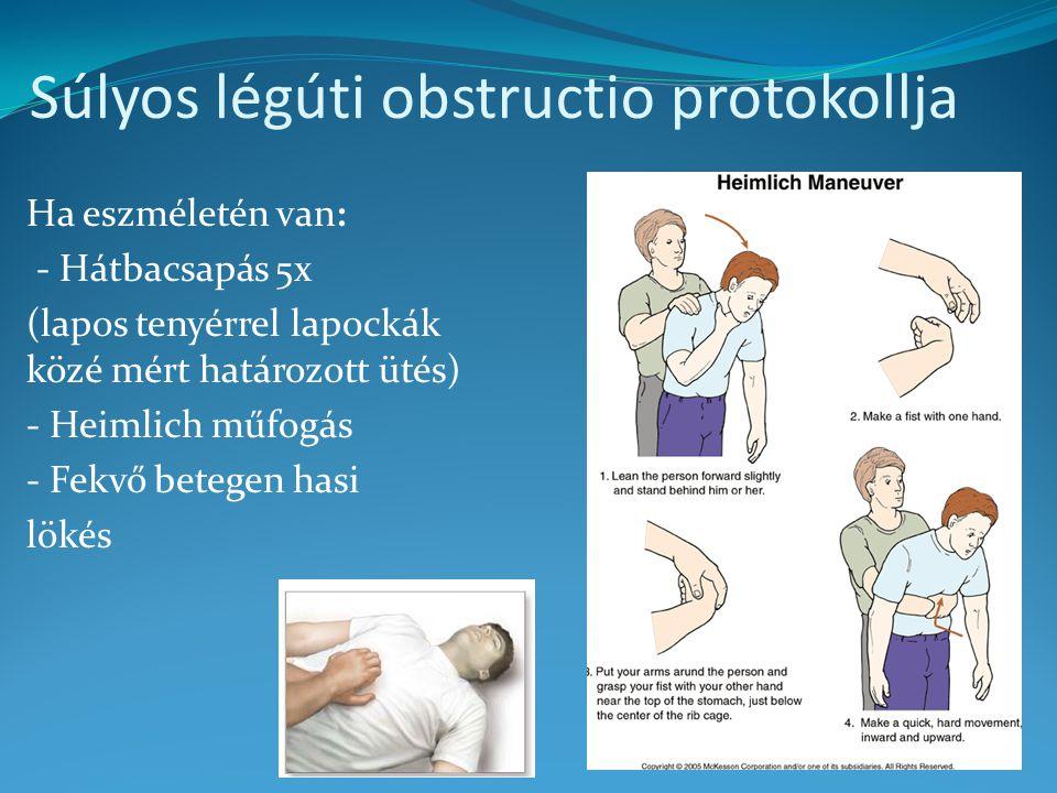 Súlyos légúti obstructio protokollja Ha eszméletén van: - Hátbacsapás 5x (lapos tenyérrel lapockák közé mért határozott ütés) - Heimlich műfogás - Fekvő betegen hasi lökés