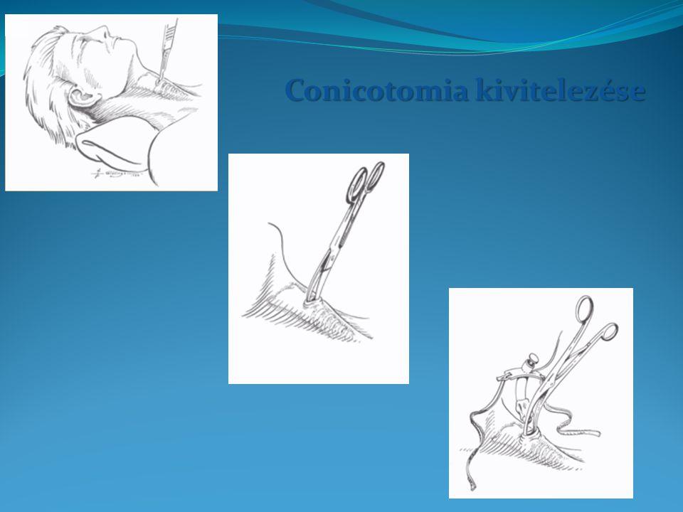 Conicotomia kivitelezése