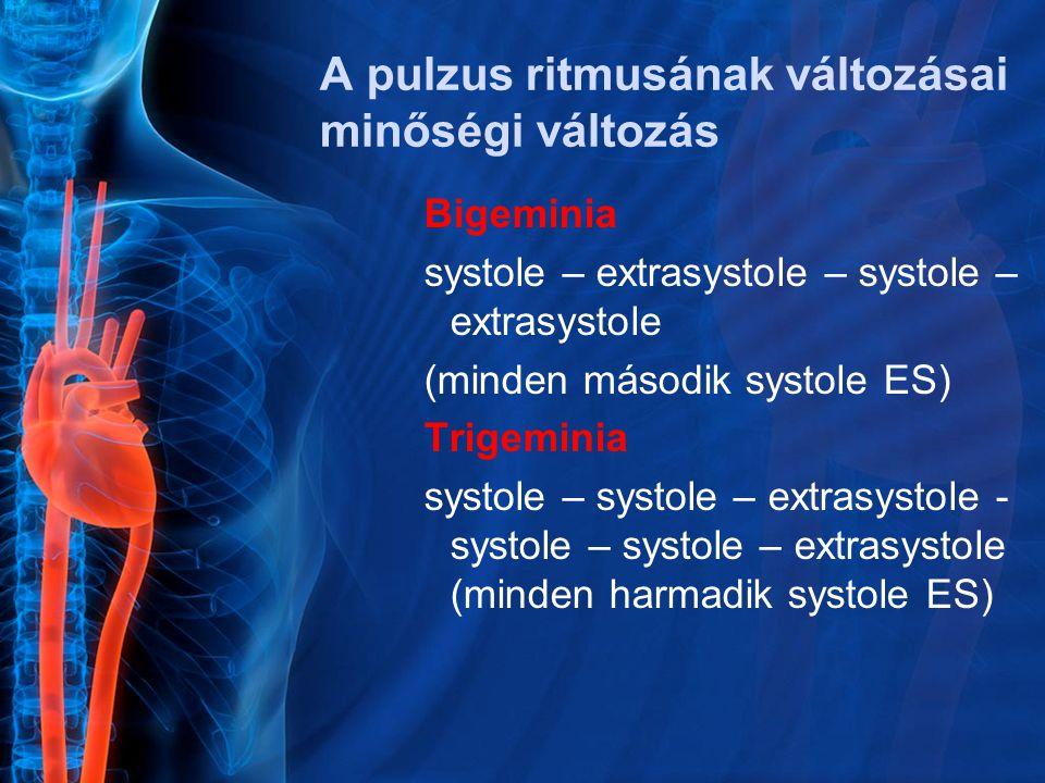 Bigeminia systole – extrasystole – systole – extrasystole (minden második systole ES) Trigeminia systole – systole – extrasystole - systole – systole – extrasystole (minden harmadik systole ES)