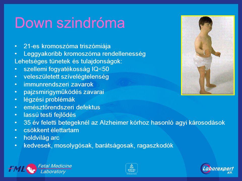 Down szindróma 21-es kromoszóma triszómiája Leggyakoribb kromoszóma rendellenesség Lehetséges tünetek és tulajdonságok: szellemi fogyatékosság IQ<50 v