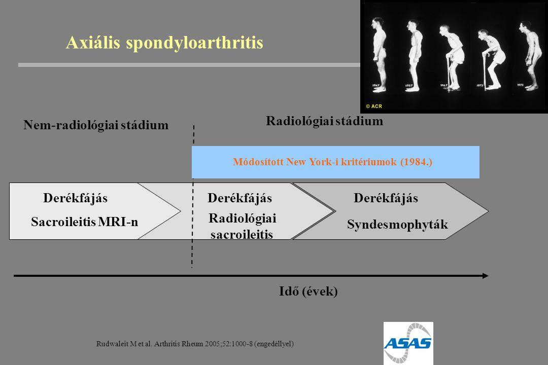 Idő (évek) Derékfájás Radiológiai sacroileitis Derékfájás Syndesmophyták Radiológiai stádium Axiális spondyloarthritis Nem-radiológiai stádium Sacroil