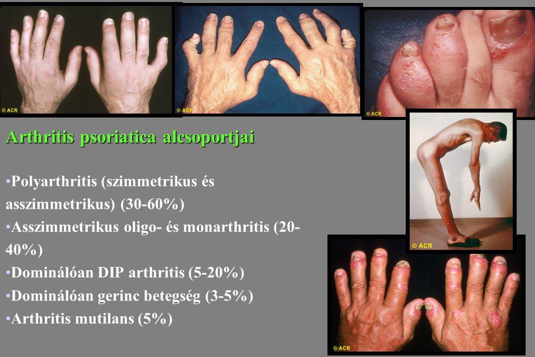 Arthritis psoriatica alcsoportjai Polyarthritis (szimmetrikus és asszimmetrikus) (30-60%) Asszimmetrikus oligo- és monarthritis (20- 40%) Dominálóan D