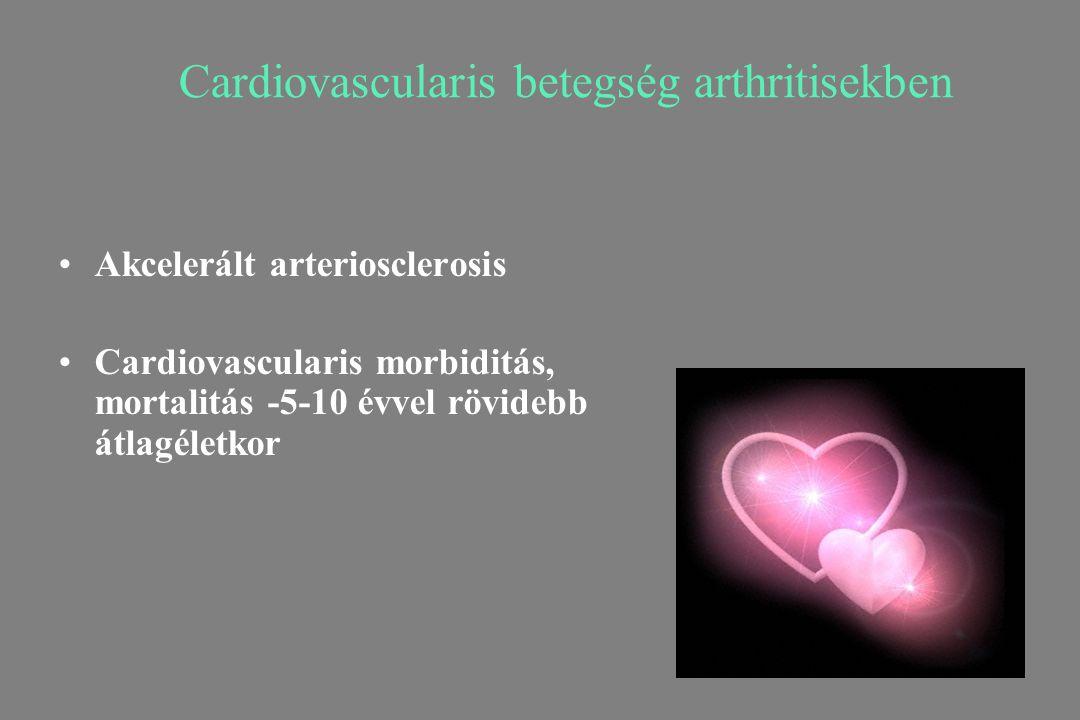 Cardiovascularis betegség arthritisekben Akcelerált arteriosclerosis Cardiovascularis morbiditás, mortalitás -5-10 évvel rövidebb átlagéletkor