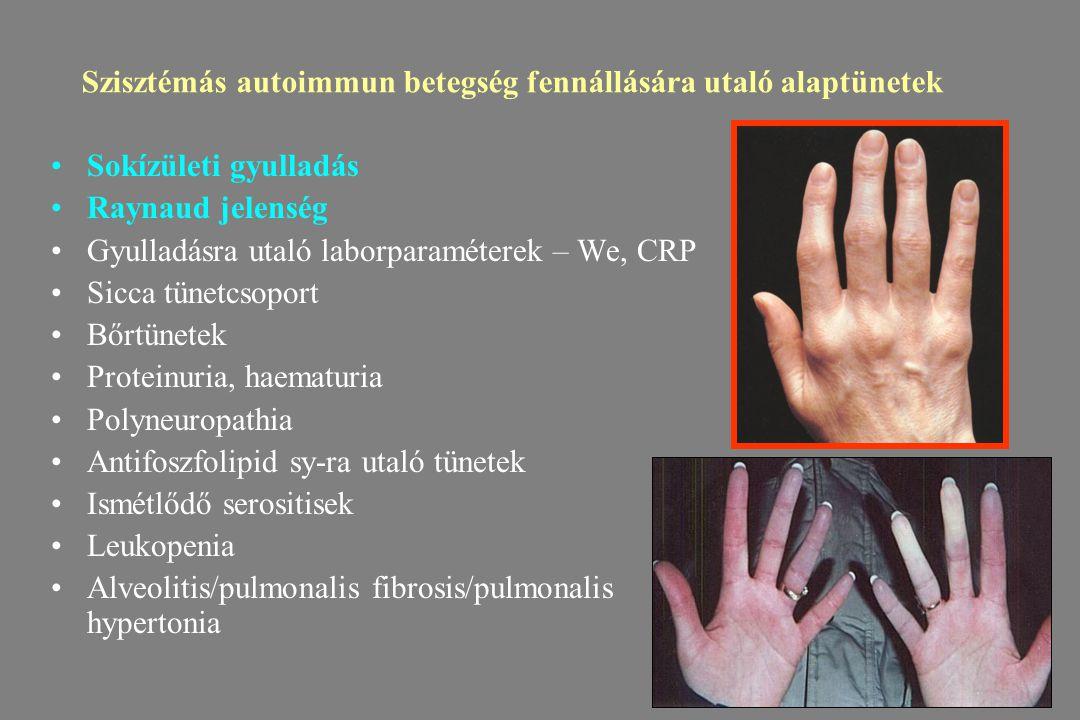 Szisztémás autoimmun betegség fennállására utaló alaptünetek Sokízületi gyulladás Raynaud jelenség Gyulladásra utaló laborparaméterek – We, CRP Sicca