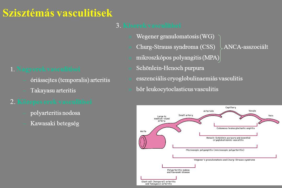 Szisztémás vasculitisek 1. Nagyerek vasculitisei –óriássejtes (temporalis) arteritis –Takayasu arteritis 2. Közepes erek vasculitisei –polyarteritis n