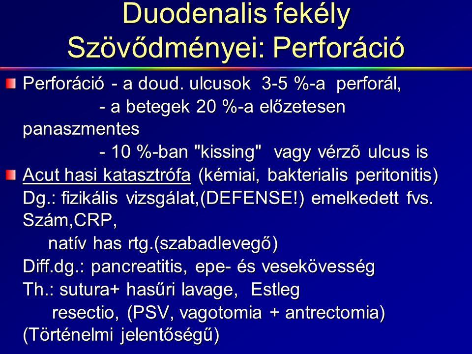 Duodenalis fekély Szövődményei: Perforáció Perforáció - a doud. ulcusok 3-5 %-a perforál, - a betegek 20 %-a előzetesen panaszmentes - 10 %-ban