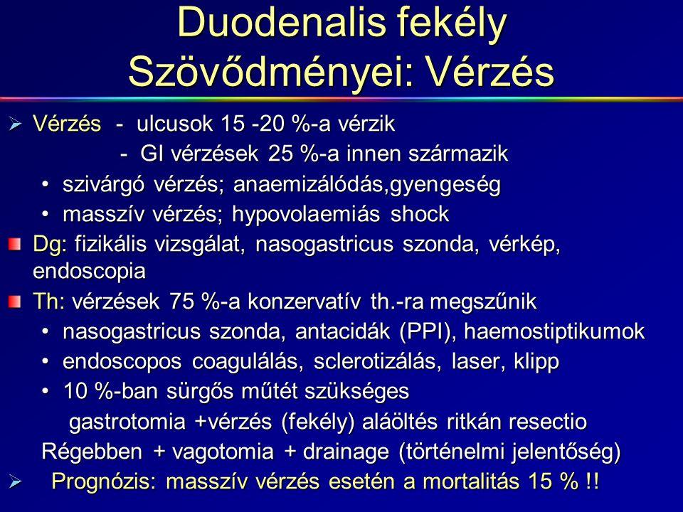 Duodenalis fekély Szövődményei: Vérzés  Vérzés - ulcusok 15 -20 %-a vérzik - GI vérzések 25 %-a innen származik - GI vérzések 25 %-a innen származik