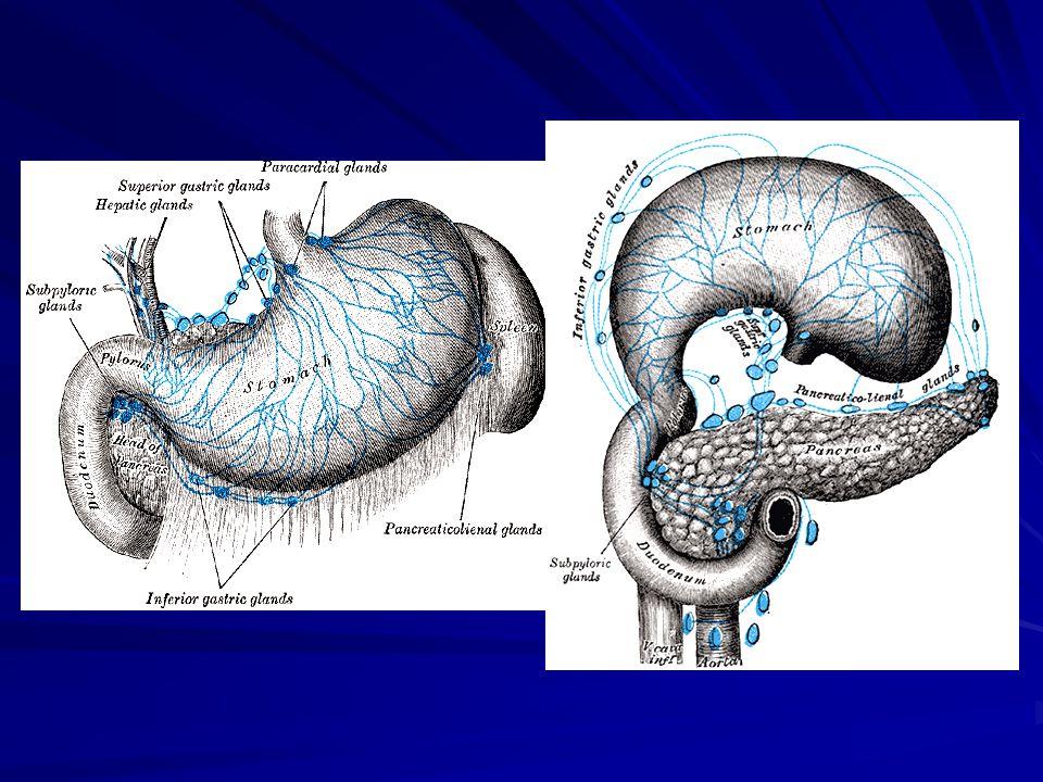 Műtéti kezelés - Resectiók Billroth I resectio (1881) technikailag egyszerûbb, mortalitása < 1 % technikailag egyszerûbb, mortalitása < 1 % gyakoribb ulcus recidíva (5%), de kevesebb csonkcarcinoma gyakoribb ulcus recidíva (5%), de kevesebb csonkcarcinoma Billroth II resectio (1885) technikailag nehezebb, mortalitása 2-4 % technikailag nehezebb, mortalitása 2-4 % ulcus recidíva 2-3 %, csonkcarcinoma 8 - 10 év(epés reflux) ulcus recidíva 2-3 %, csonkcarcinoma 8 - 10 év(epés reflux) csonkelégtelenség, afferens kacs syndr.pancreatitis, csonkelégtelenség, afferens kacs syndr.pancreatitis, ulcus pepticum jejuni, ulcus pepticum jejuni, korai dumping syndr: hyperosmoláris ételek korai dumping syndr: hyperosmoláris ételek késõi dumping sundr: posthyperglykémiás hypoglykémia - VIP késõi dumping sundr: posthyperglykémiás hypoglykémia - VIP Total gastrectomia anaemia, hasmenés, malabsorptio, dumping syndr.