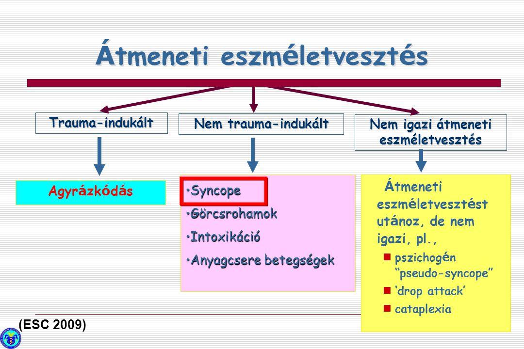 Az igazi syncope okai Orthostatikus Arrhythmiák Struktúrális cardio-pulm.