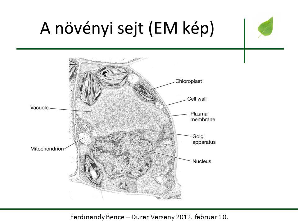 Ferdinandy Bence – Dürer Verseny 2012. február 10. A növényi sejt (EM kép)