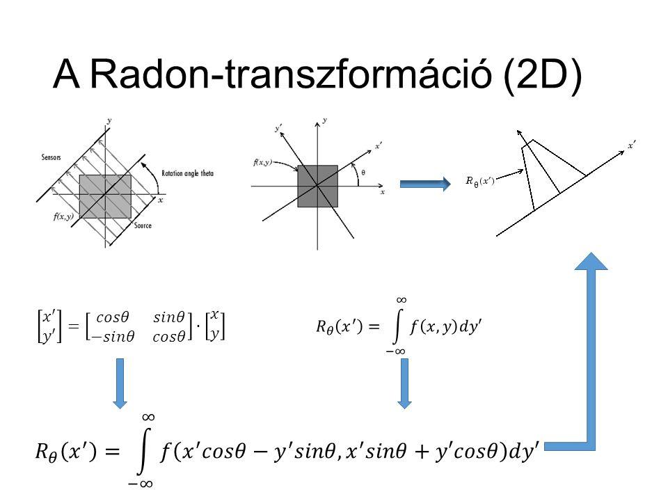 A Radon-transzformáció (2D)