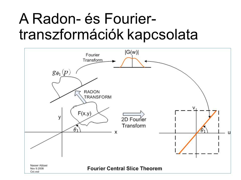 A Radon- és Fourier- transzformációk kapcsolata