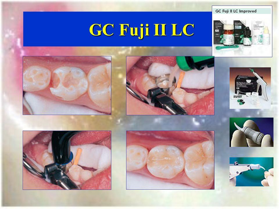 GC Fuji II LC