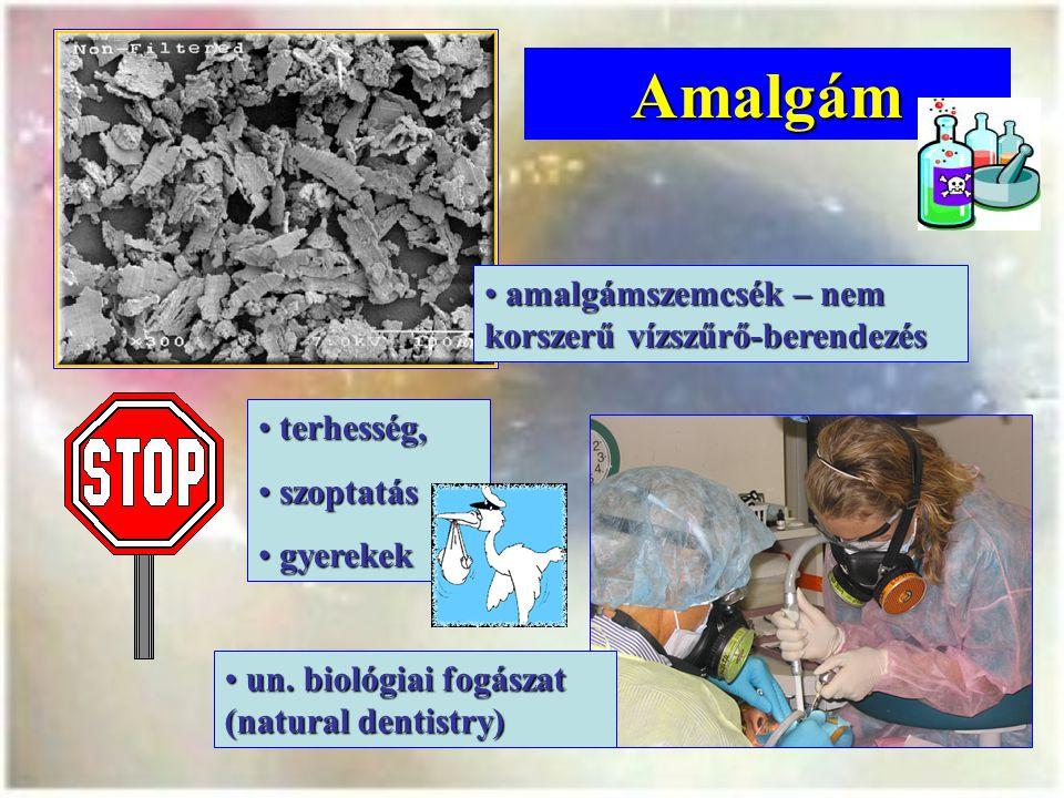 Amalgám amalgámszemcsék – nem korszerű vízszűrő-berendezés amalgámszemcsék – nem korszerű vízszűrő-berendezés un.