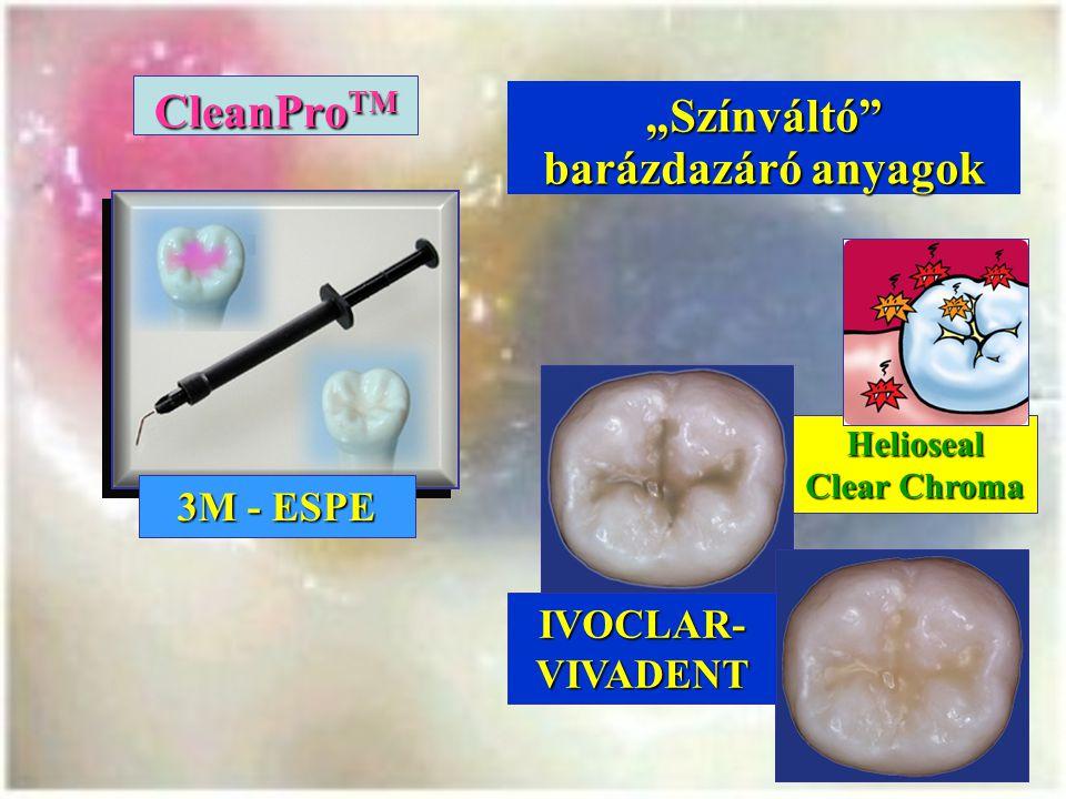 """CleanPro TM 3M - ESPE """"Színváltó barázdazáró anyagok Helioseal Clear Chroma IVOCLAR- VIVADENT"""