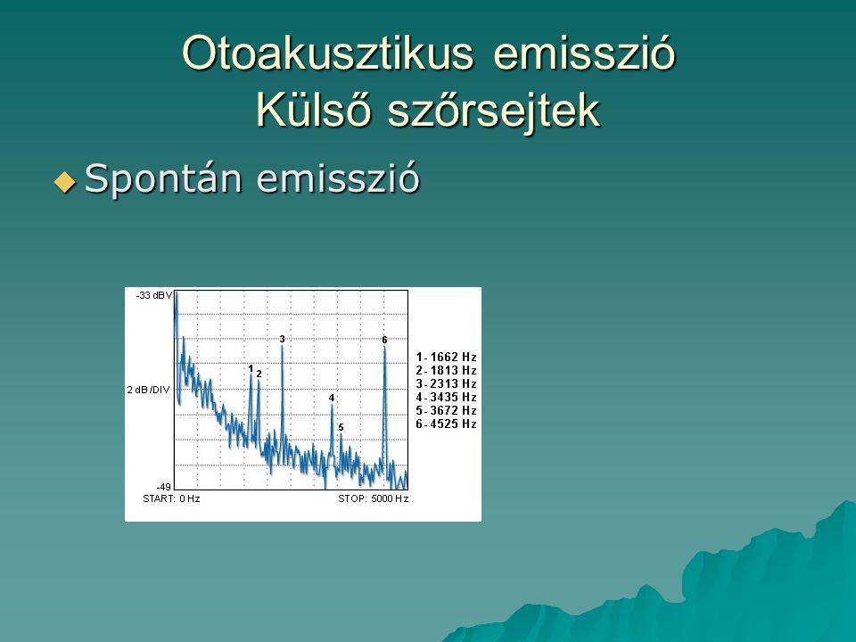 Otoakusztikus emisszió Külső szőrsejtek  Spontán emisszió