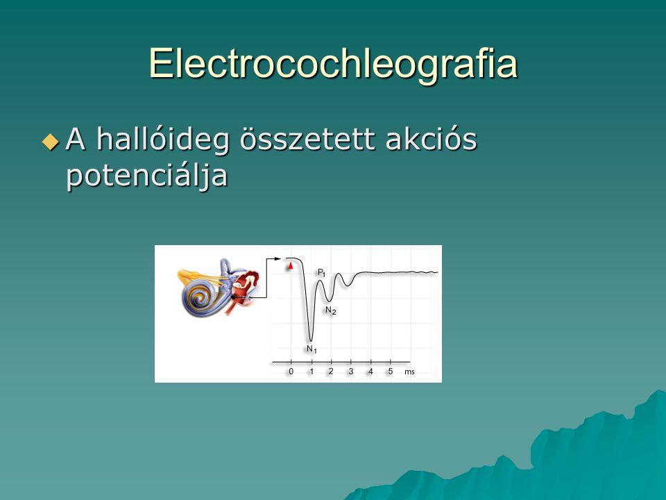 Electrocochleografia  A hallóideg összetett akciós potenciálja