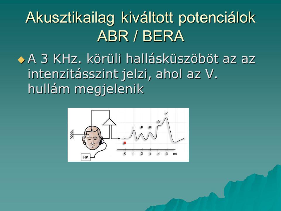 Akusztikailag kiváltott potenciálok ABR / BERA  A 3 KHz. körüli hallásküszöböt az az intenzitásszint jelzi, ahol az V. hullám megjelenik