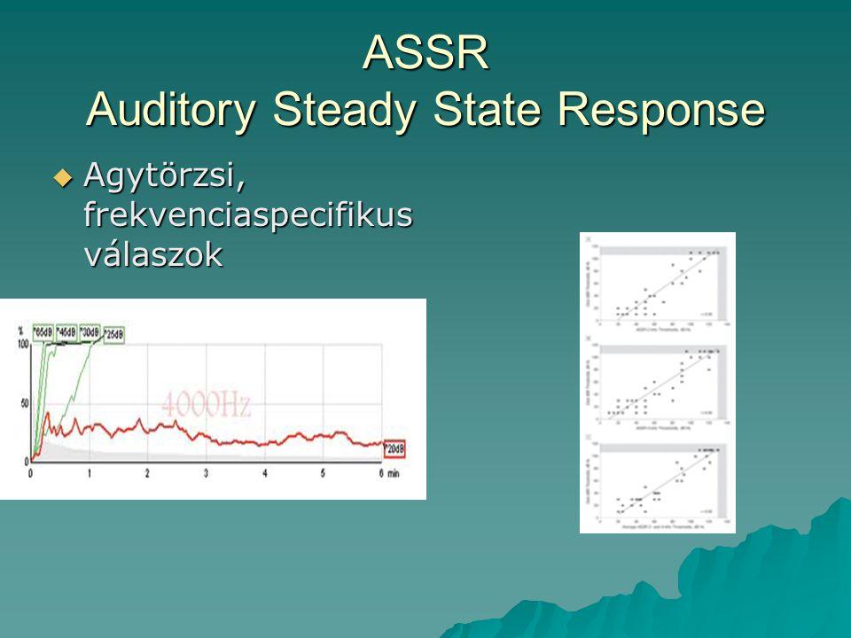 ASSR Auditory Steady State Response  Agytörzsi, frekvenciaspecifikus válaszok