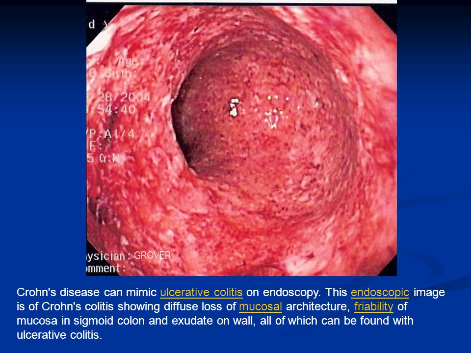 Crohn's disease can mimic ulcerative colitis on endoscopy. This endoscopic image is of Crohn's colitis showing diffuse loss of mucosal architecture, f