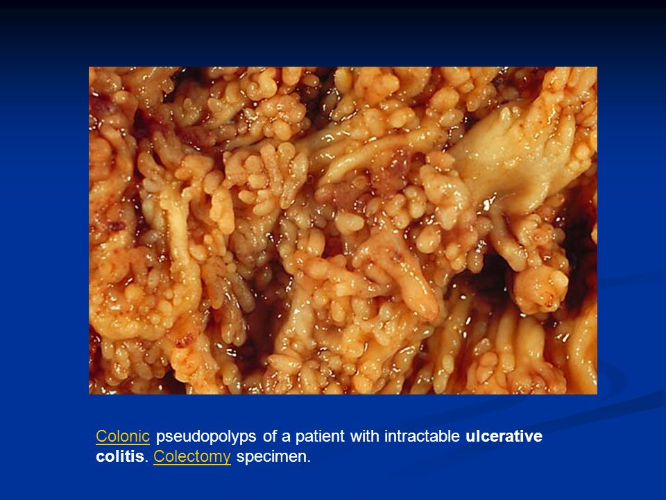 ColonicColonic pseudopolyps of a patient with intractable ulcerative colitis. Colectomy specimen.Colectomy