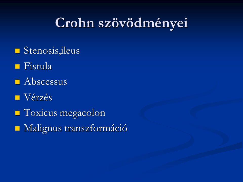 Crohn szövödményei Stenosis,ileus Stenosis,ileus Fistula Fistula Abscessus Abscessus Vérzés Vérzés Toxicus megacolon Toxicus megacolon Malignus transz