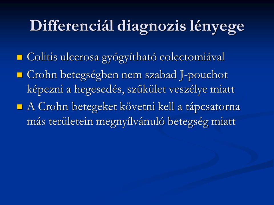 Differenciál diagnozis lényege Colitis ulcerosa gyógyítható colectomiával Colitis ulcerosa gyógyítható colectomiával Crohn betegségben nem szabad J-po