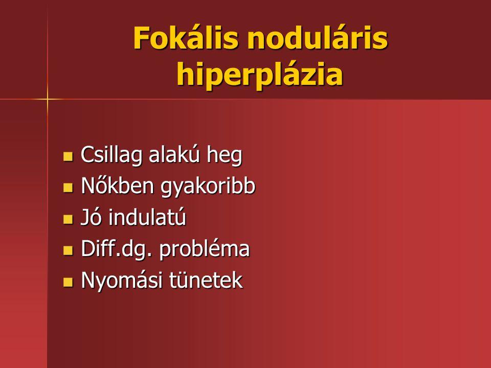 Fokális noduláris hiperplázia Csillag alakú heg Csillag alakú heg Nőkben gyakoribb Nőkben gyakoribb Jó indulatú Jó indulatú Diff.dg. probléma Diff.dg.