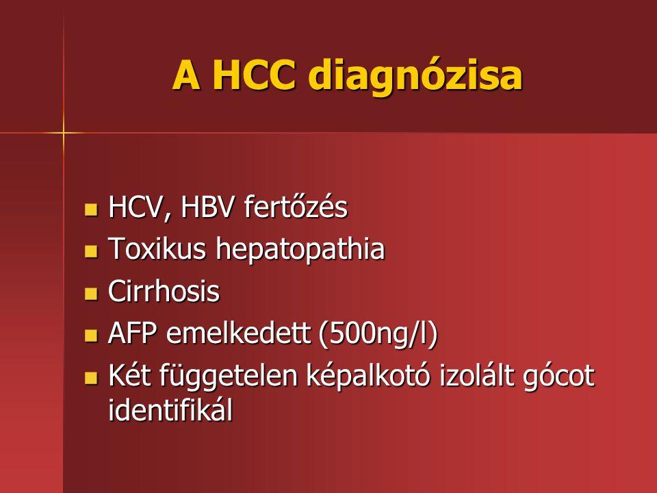 A HCC diagnózisa HCV, HBV fertőzés HCV, HBV fertőzés Toxikus hepatopathia Toxikus hepatopathia Cirrhosis Cirrhosis AFP emelkedett (500ng/l) AFP emelke