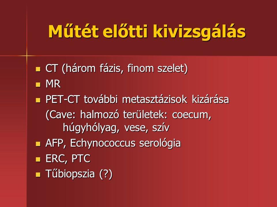 Műtét előtti kivizsgálás CT (három fázis, finom szelet) CT (három fázis, finom szelet) MR MR PET-CT további metasztázisok kizárása PET-CT további meta