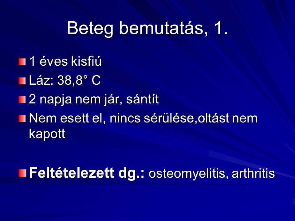 Beteg bemutatás, 1. 1 éves kisfiú Láz: 38,8° C 2 napja nem jár, sántít Nem esett el, nincs sérülése,oltást nem kapott Feltételezett dg.: osteomyelitis