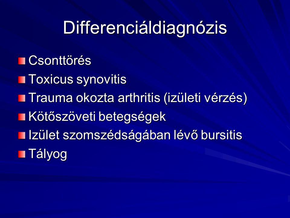 Differenciáldiagnózis Csonttörés Toxicus synovitis Trauma okozta arthritis (izületi vérzés) Kötőszöveti betegségek Izület szomszédságában lévő bursiti