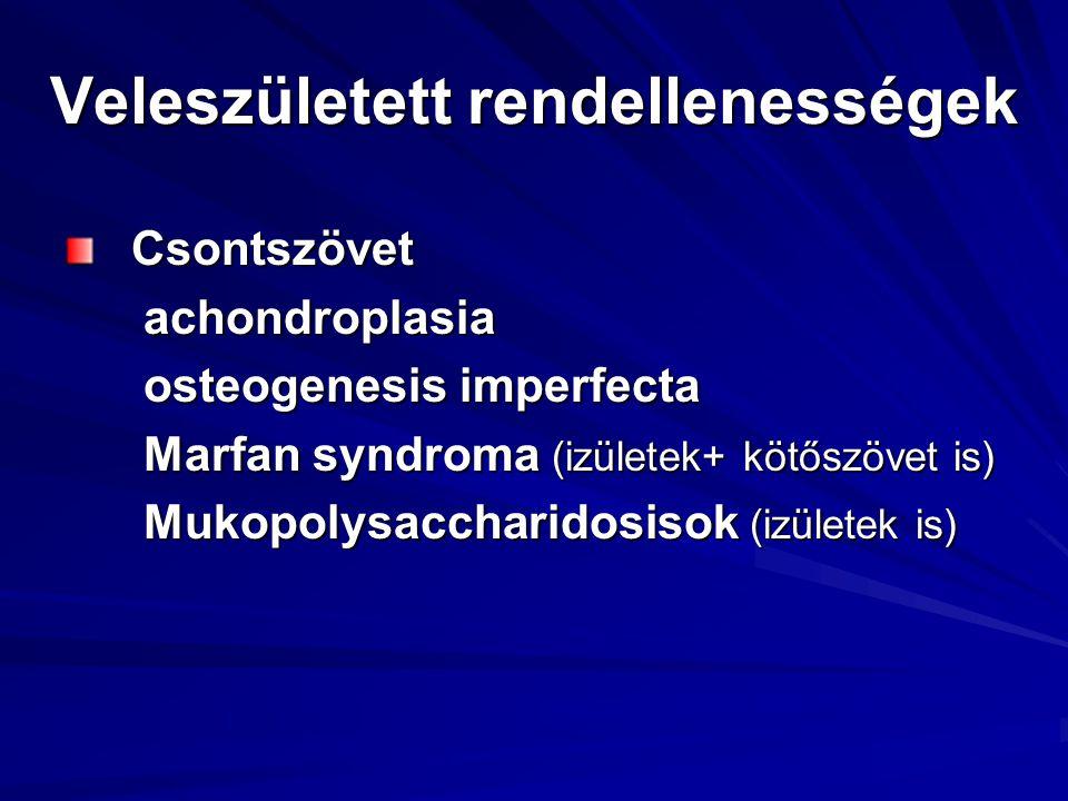 Veleszületett rendellenességek Csontszövet Csontszövet achondroplasia achondroplasia osteogenesis imperfecta osteogenesis imperfecta Marfan syndroma (