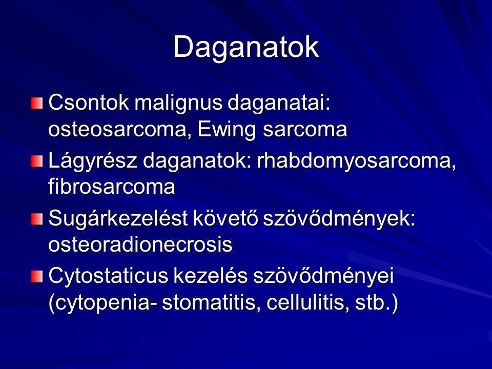 Daganatok Csontok malignus daganatai: osteosarcoma, Ewing sarcoma Lágyrész daganatok: rhabdomyosarcoma, fibrosarcoma Sugárkezelést követő szövődmények