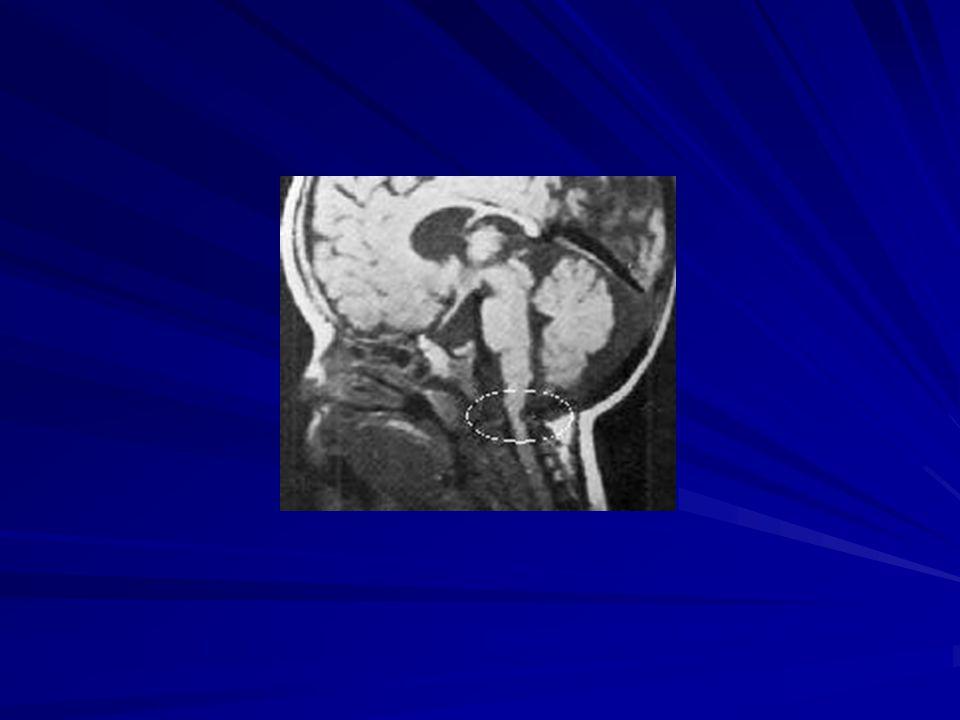 Septicus arthritis Láz A végtag kímélése Helyi duzzanat A végtag mozgatásakor heves fájdalom Előfordulási gyakoriság: térd, csípő, boka, könyök, váll Kórokozók: S.