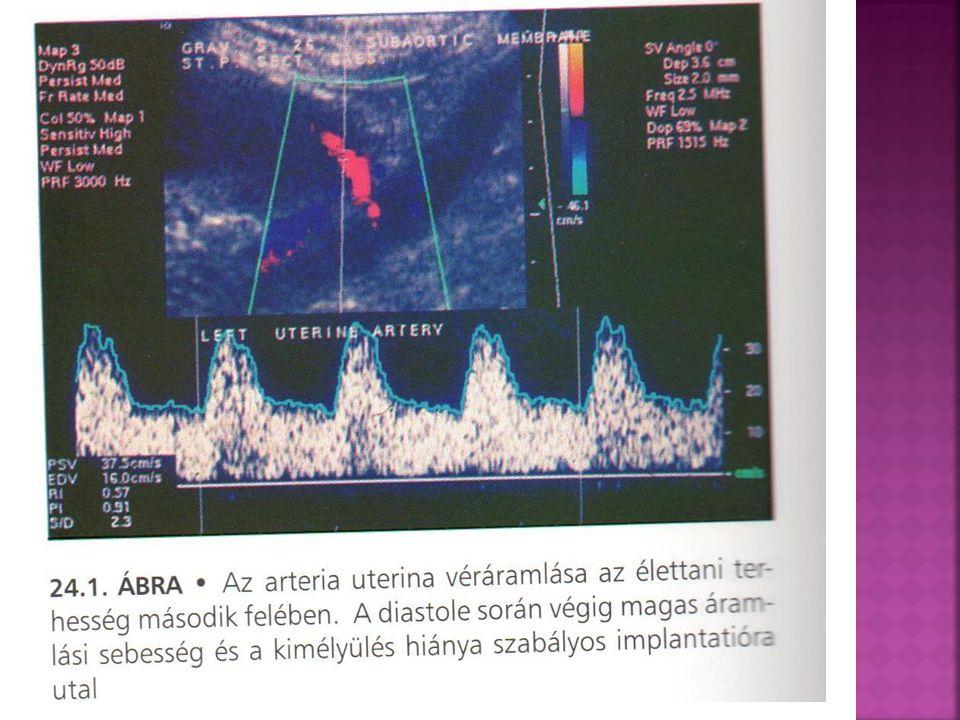 """ Hypoxia esetén az agyi erek tágulata a kompenzáló mechanizmus, ez a """"brain- sparing effect  Az ACM diastolés sebessége fokozott, az ellenállás a terhességi korhoz képest alacsony, a másik három érre vonatkozóan az értékek megfelelőek, retardatióra kell gondolni"""