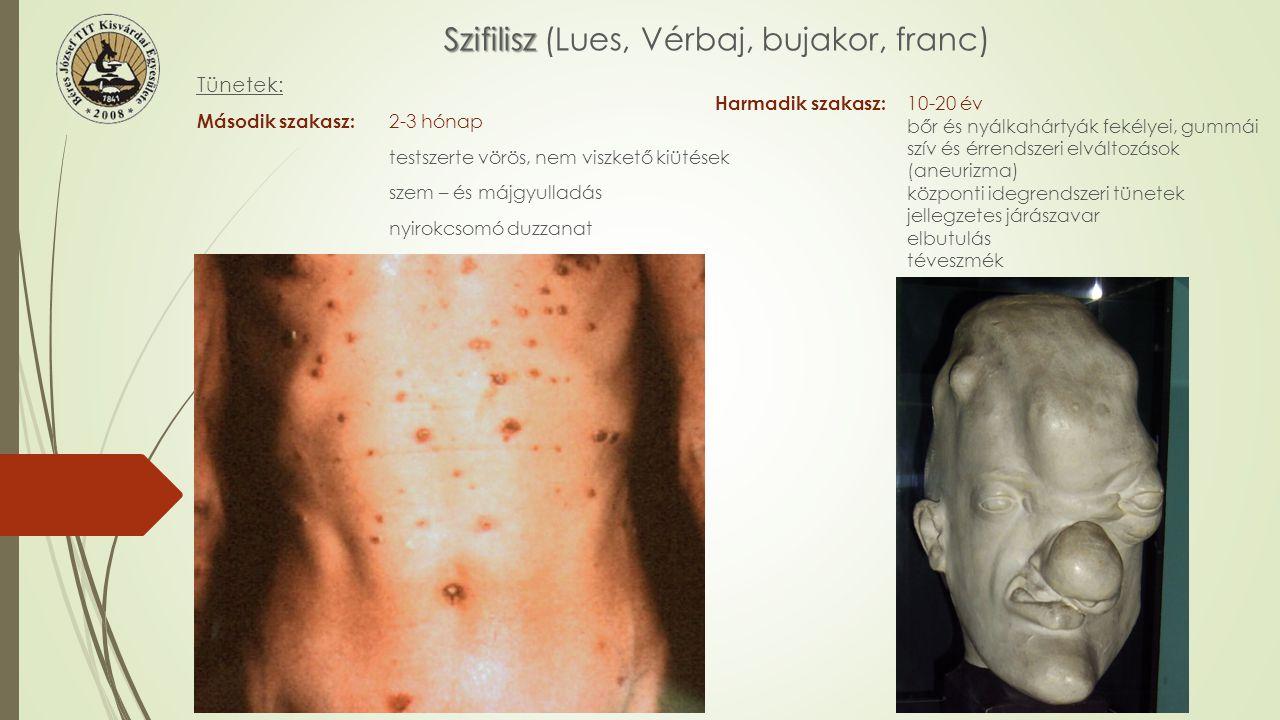 Szifilisz Szifilisz (Lues, Vérbaj, bujakor, franc) Magzatkori fertőzés ANYA MAGZAT Bőr és csontfejlődési zavarok Süketség Hordó alakú metszőfogak A szem szaruhártyájának gyulladása Szűrés:1906 gyorsteszt vérvétel bőr és nemi beteg gondozó Kezelés:Nagy dózisú Penicillin Megelőzés: Monogám kapcsolat Condom Terhes nők szűrése Fertőző források felkutatása, szűrése és kezelése