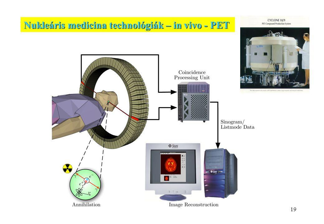 19 Nukleáris medicina technológiák – in vivo - PET