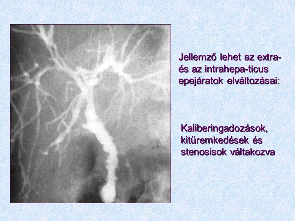 Jellemző lehet az extra- és az intrahepa-ticus epejáratok elváltozásai: Kaliberingadozások, kitüremkedések és stenosisok váltakozva